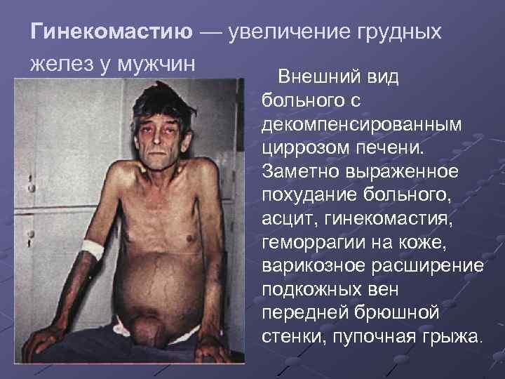 Гинекомастию — увеличение грудных желез у мужчин Внешний вид больного с декомпенсированным циррозом печени.