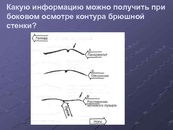 Какую информацию можно получить при боковом осмотре контура брюшной стенки?