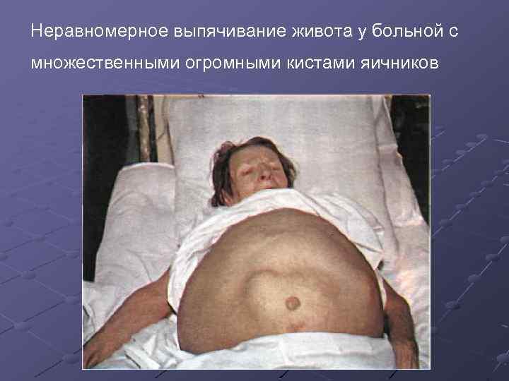 Неравномерное выпячивание живота у больной с множественными огромными кистами яичников