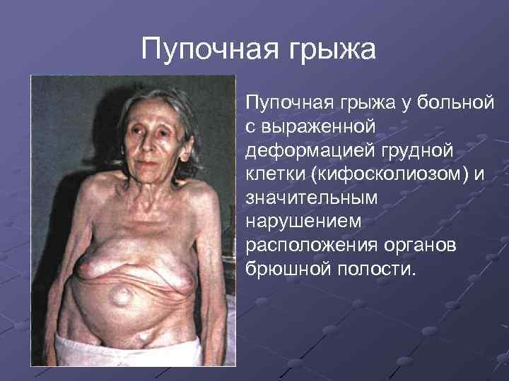 Пупочная грыжа у больной с выраженной деформацией грудной клетки (кифосколиозом) и значительным нарушением расположения