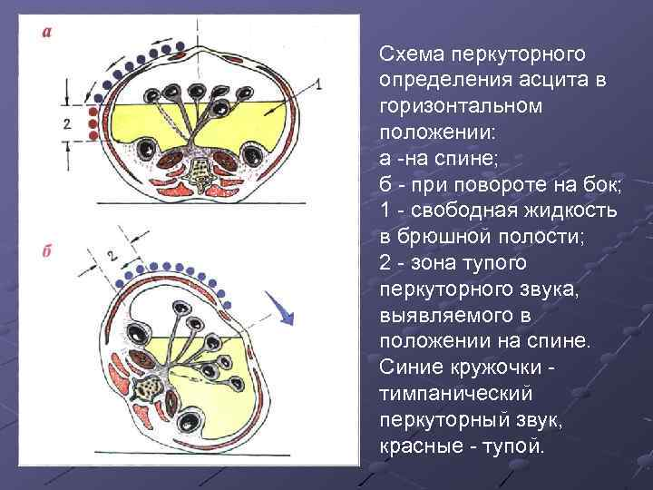 Схема перкуторного определения асцита в горизонтальном положении: а на спине; б при повороте на