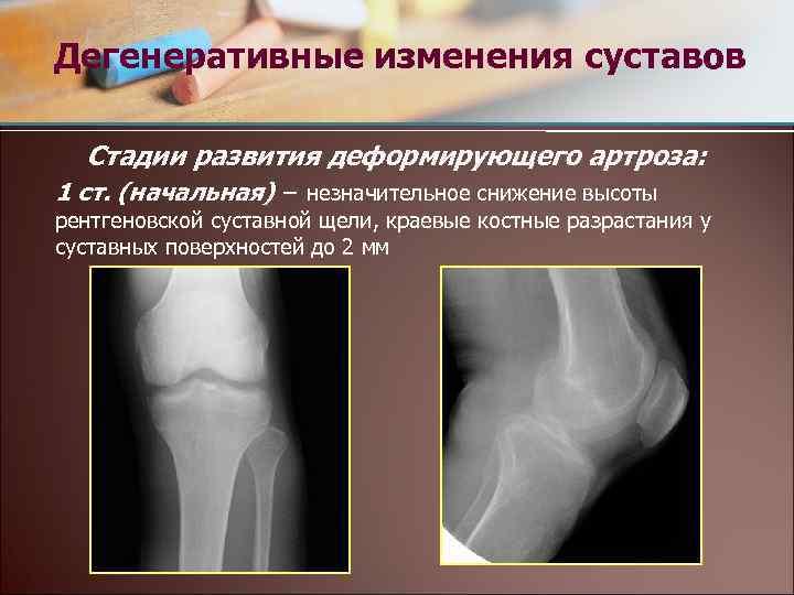 Что такое костные разростания по краям суставных поверхностей санатории в евпатории лечение суставов