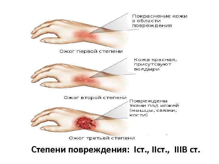 Степени повреждения: Iст. , IIIB ст.