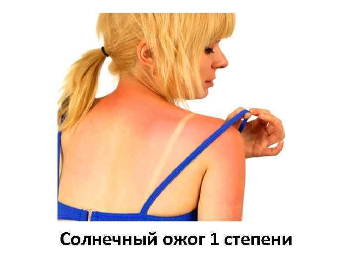 Солнечный ожог 1 степени
