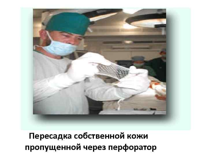Пересадка собственной кожи пропущенной через перфоратор