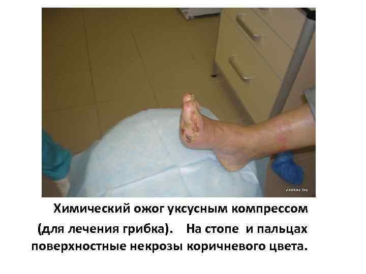 Химический ожог уксусным компрессом (для лечения грибка). На стопе и пальцах поверхностные некрозы коричневого