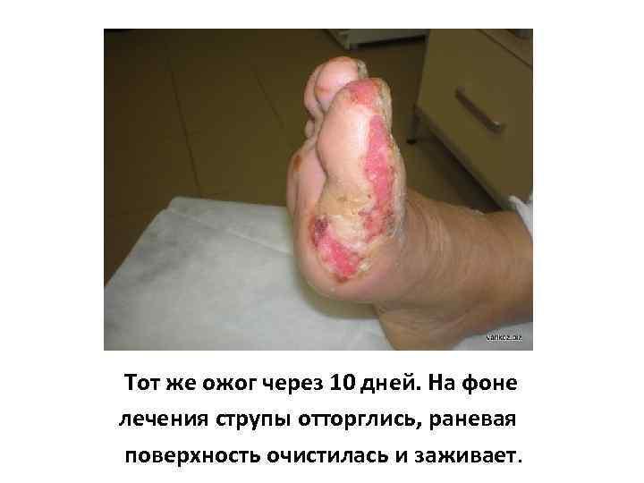 Тот же ожог через 10 дней. На фоне лечения струпы отторглись, раневая поверхность очистилась