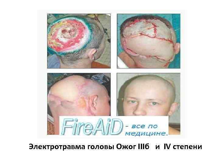 Электротравма головы Ожог IIIб и IV степени