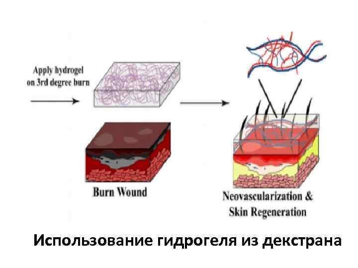 Использование гидрогеля из декстрана