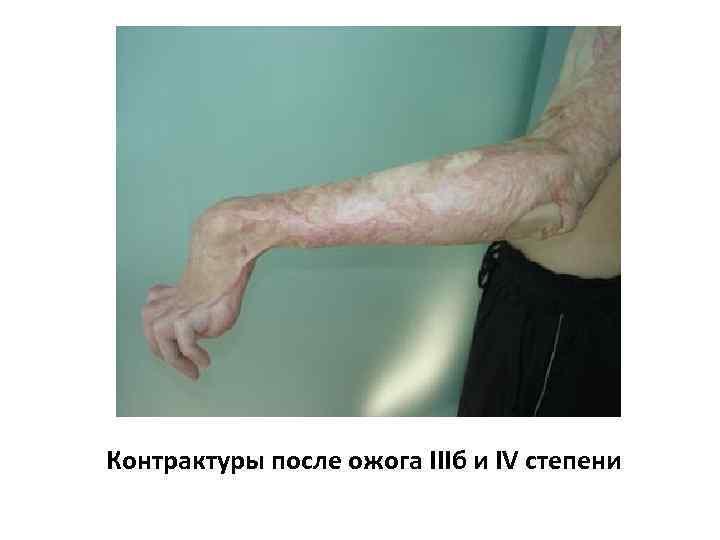 Контрактуры после ожога IIIб и IV степени