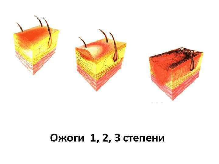 Ожоги 1, 2, 3 степени