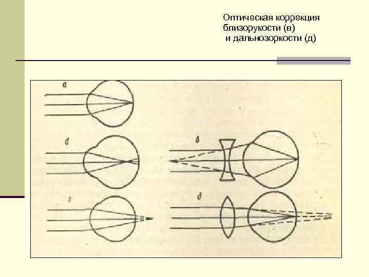 Оптическая коррекция близорукости (в) и дальнозоркости (д)