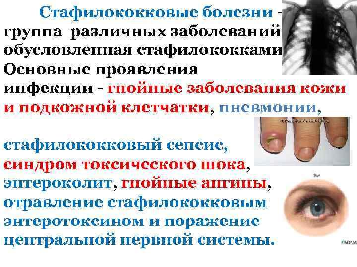 Стафилококковые болезни – группа различных заболеваний, обусловленная стафилококками. Основные проявления инфекции - гнойные заболевания