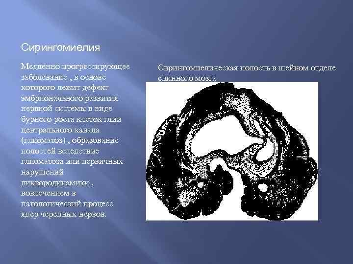 Сирингомиелия Медленно прогрессирующее заболевание , в основе которого лежит дефект эмбрионального развития нервной системы