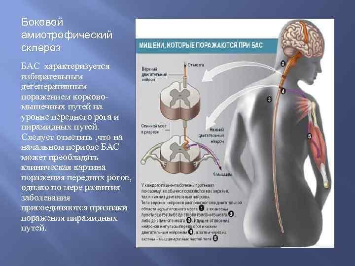 Боковой амиотрофический склероз БАС характеризуется избирательным дегенеративным поражением корковомышечных путей на уровне переднего рога