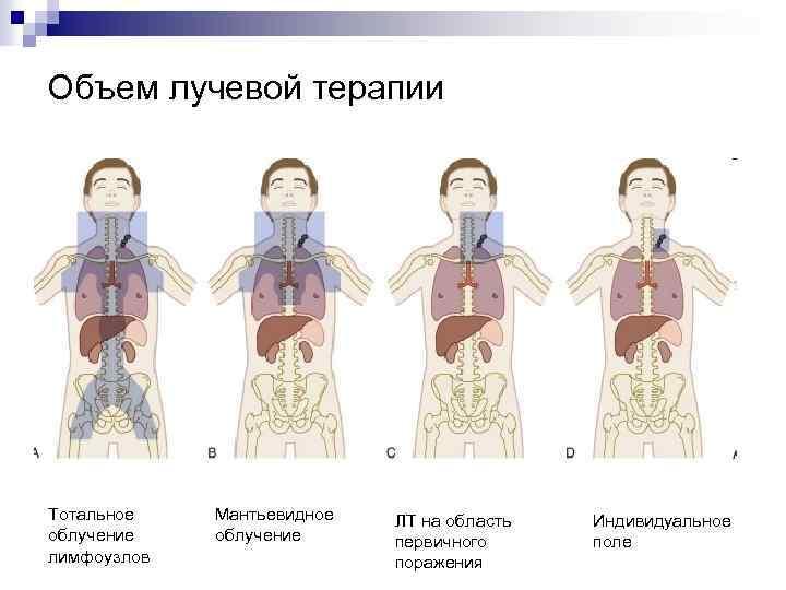 Объем лучевой терапии Тотальное облучение лимфоузлов Мантьевидное облучение ЛТ на область первичного поражения Индивидуальное