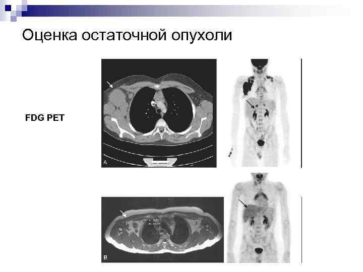 Оценка остаточной опухоли FDG PET