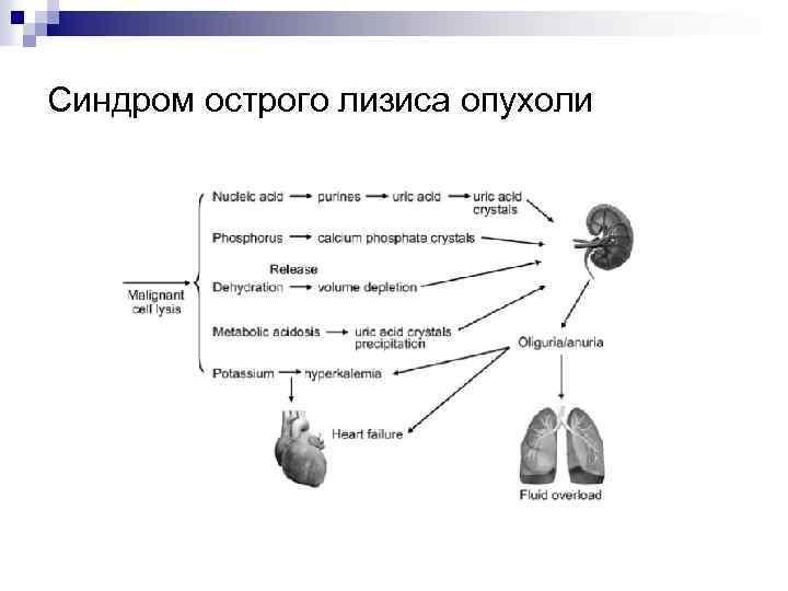 Синдром острого лизиса опухоли