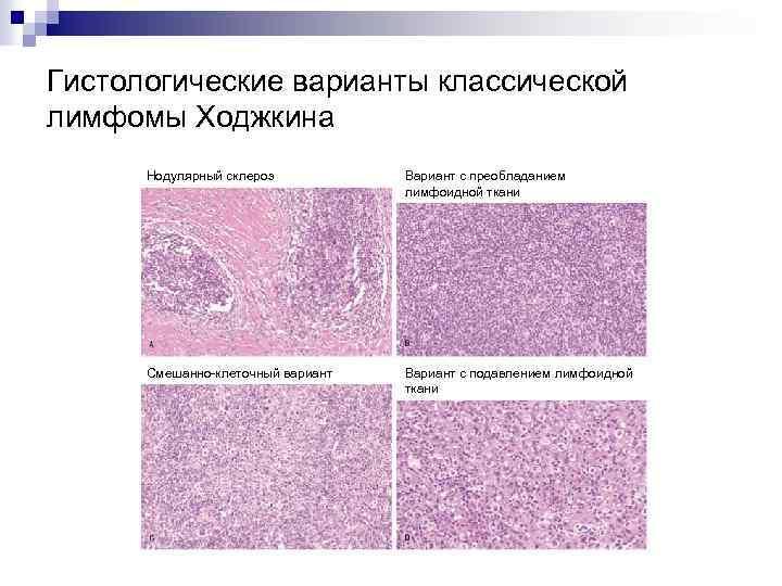 Гистологические варианты классической лимфомы Ходжкина Нодулярный склероз Вариант с преобладанием лимфоидной ткани Смешанно-клеточный вариант