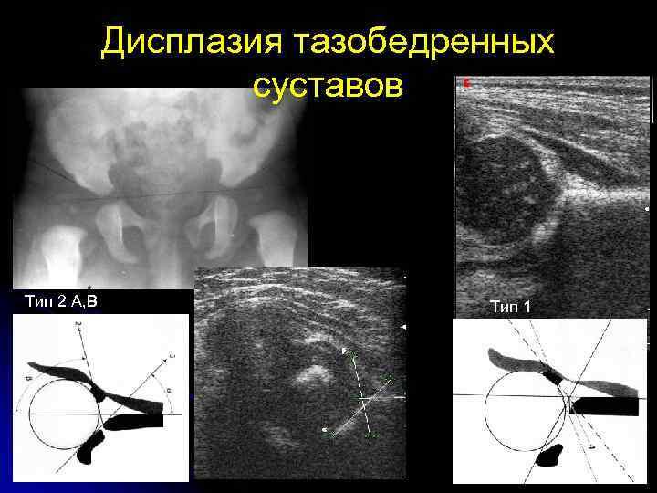 Дисплазия тазобедренных суставов тип 2а лечение воспаление суставов компресс