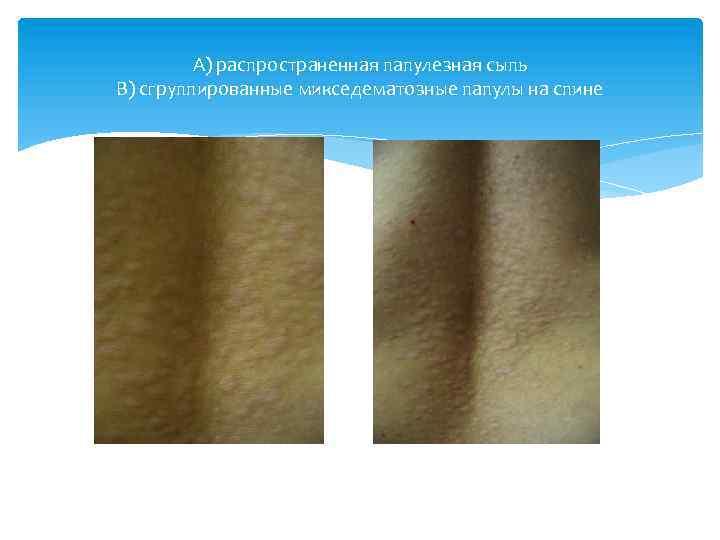 А) распространенная папулезная сыпь В) сгруппированные микседематозные папулы на спине