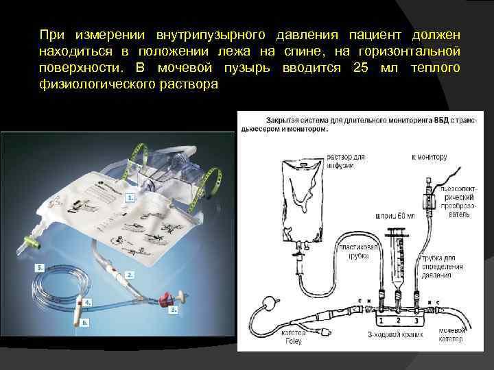 При измерении внутрипузырного давления пациент должен находиться в положении лежа на спине, на горизонтальной