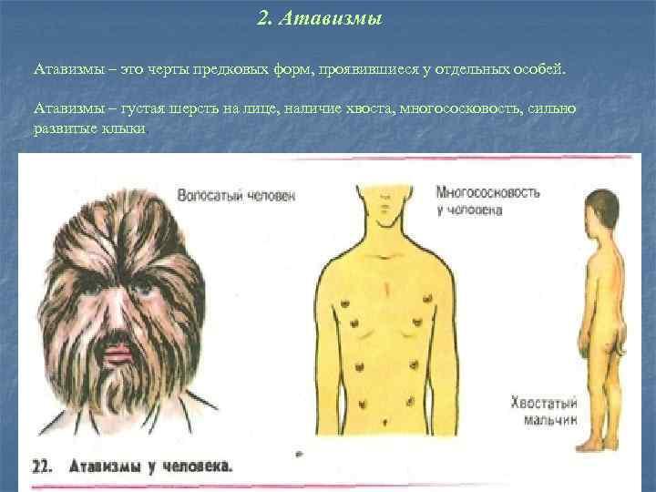 2. Атавизмы – это черты предковых форм, проявившиеся у отдельных особей. Атавизмы – густая