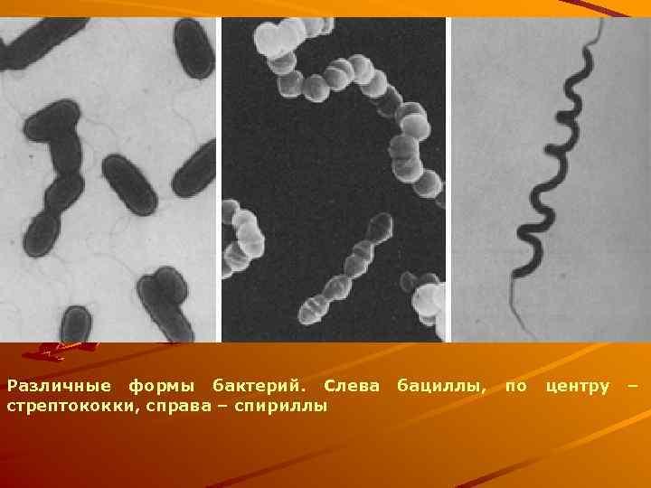 Различные формы бактерий. Слева стрептококки, справа – спириллы бациллы, по центру –