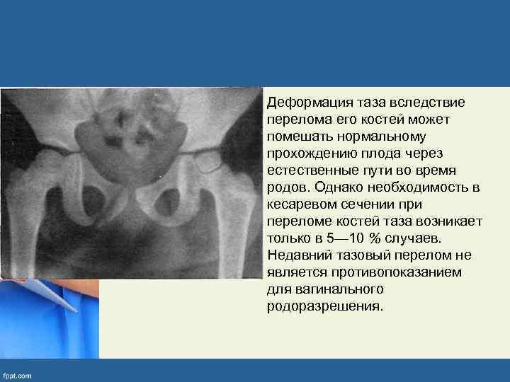 • Деформация таза вследствие перелома его костей может помешать нормальному прохождению плода через