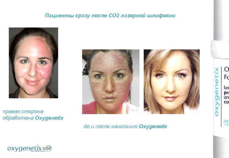 Пациенты сразу после СО 2 лазерной шлифовки правая сторона обработана Oxygenetix до и после