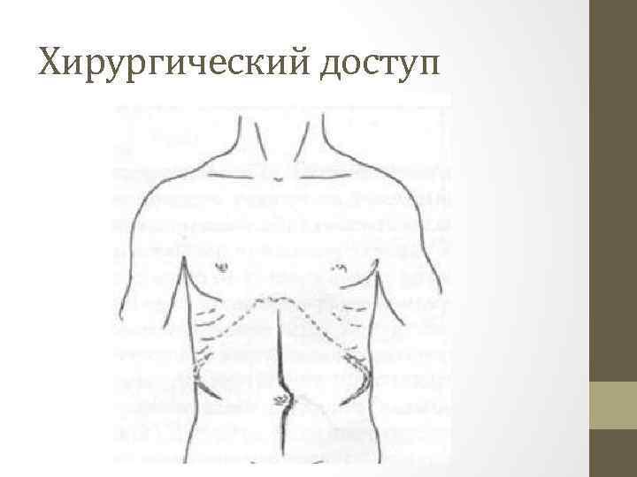 Хирургический доступ