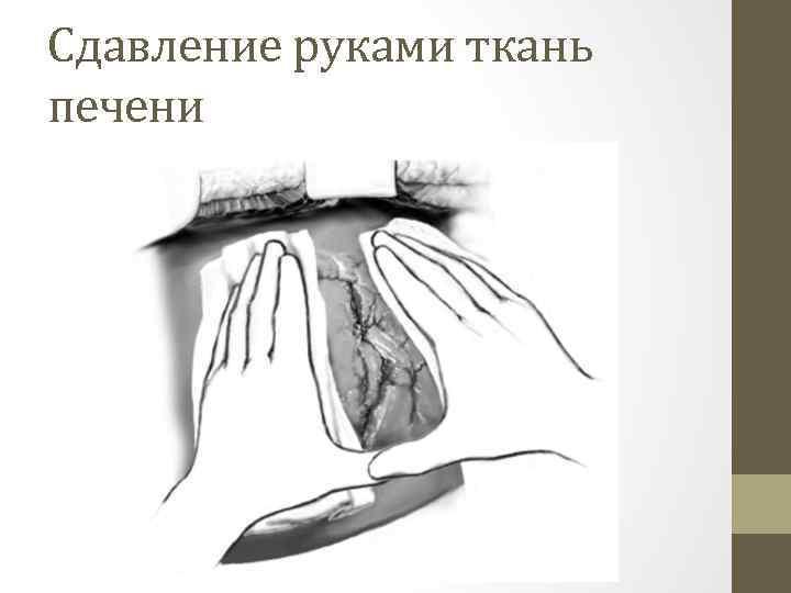 Cдавление руками ткань печени