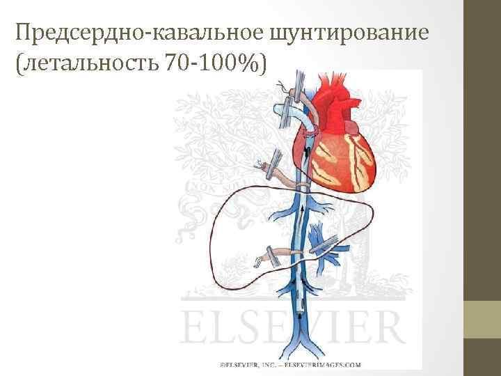 Предсердно-кавальное шунтирование (летальность 70 -100%)