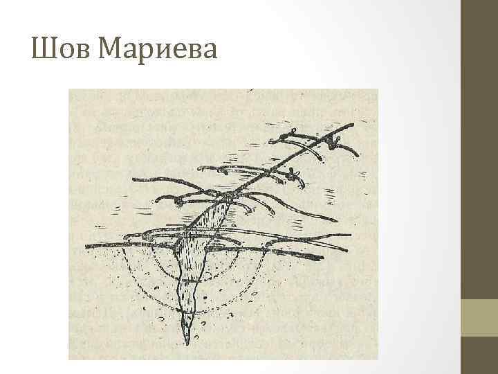 Шов Мариева