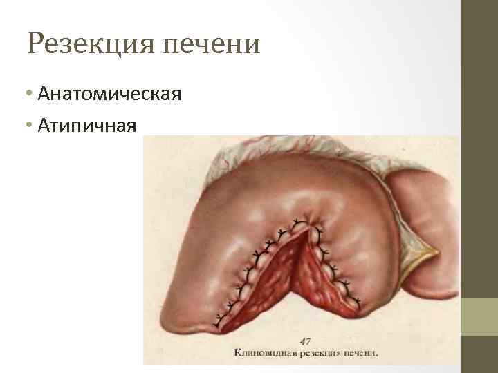 Резекция печени • Анатомическая • Атипичная