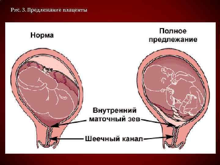 Рис. 3. Предлежание плаценты