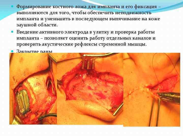 Формирование костного ложа для импланта и его фиксация – выполняются для того, чтобы