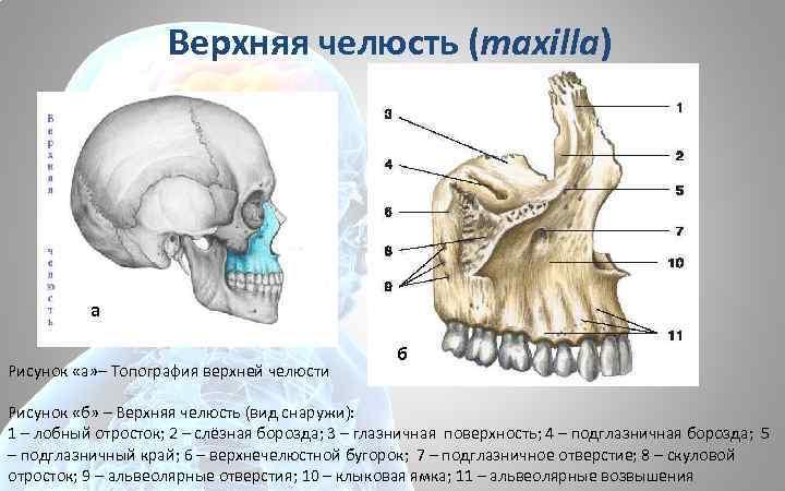 Верхняя челюсть (maxilla) а Рисунок «а» – Топография верхней челюсти б Рисунок «б» –