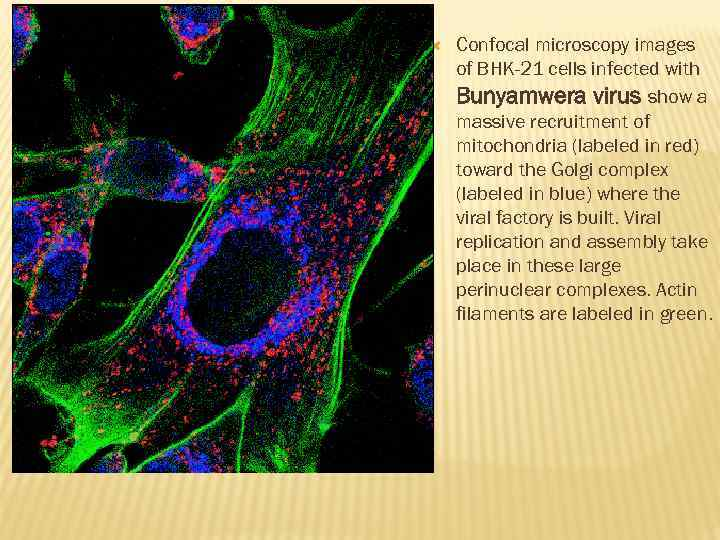 Confocal microscopy images of BHK-21 cells infected with Bunyamwera virus show a massive
