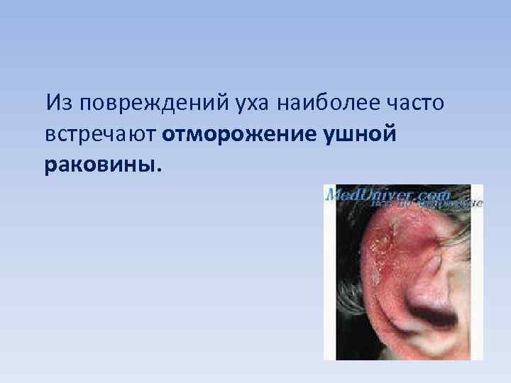 Из повреждений уха наиболее часто встречают отморожение ушной раковины.