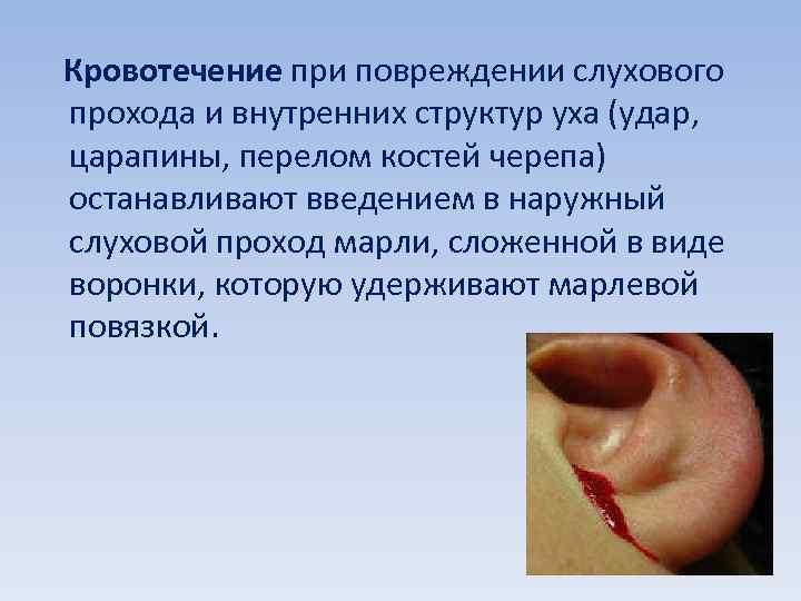 Кровотечение при повреждении слухового прохода и внутренних структур уха (удар, царапины, перелом костей черепа)
