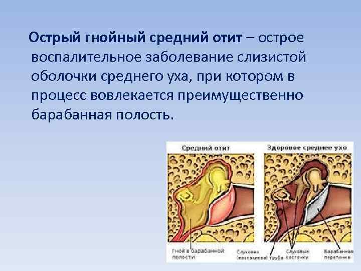 Острый гнойный средний отит – острое воспалительное заболевание слизистой оболочки среднего уха, при котором