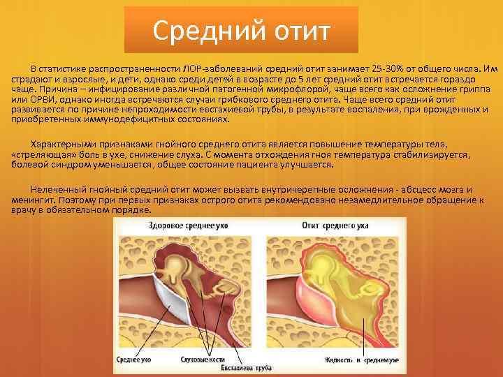 Отит уши болезнь боль цистит облегчить