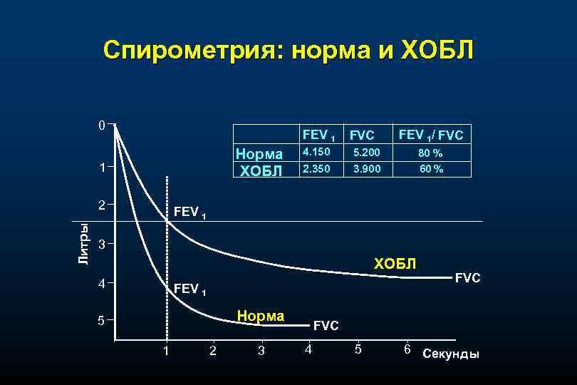 Спирометрия: норма и ХОБЛ 0 FEV 1 Норма ХОБЛ 1 Литры 2 FVC FEV