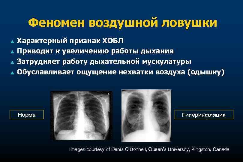 Феномен воздушной ловушки p p Характерный признак ХОБЛ Приводит к увеличению работы дыхания Затрудняет