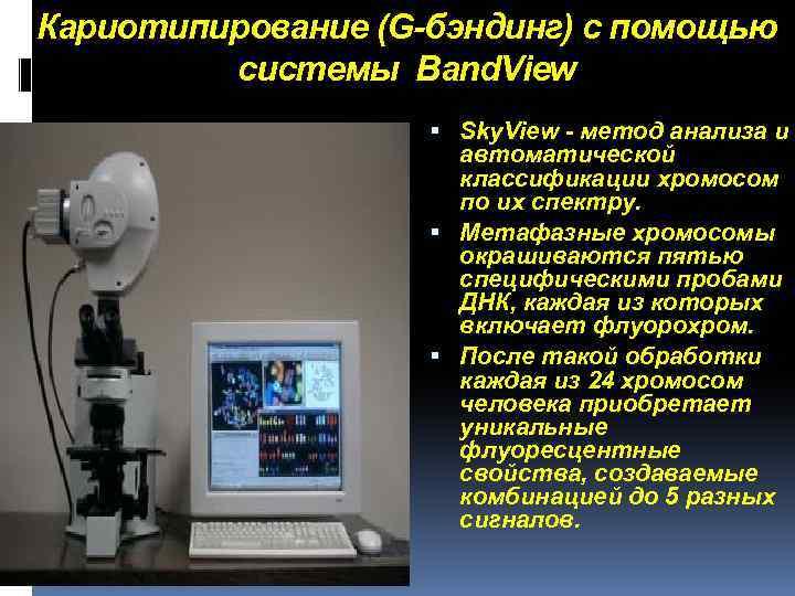 Кариотипирование (G-бэндинг) с помощью системы Band. View Sky. View - метод анализа и автоматической