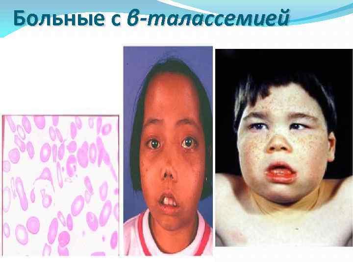 Больные с β-талассемией