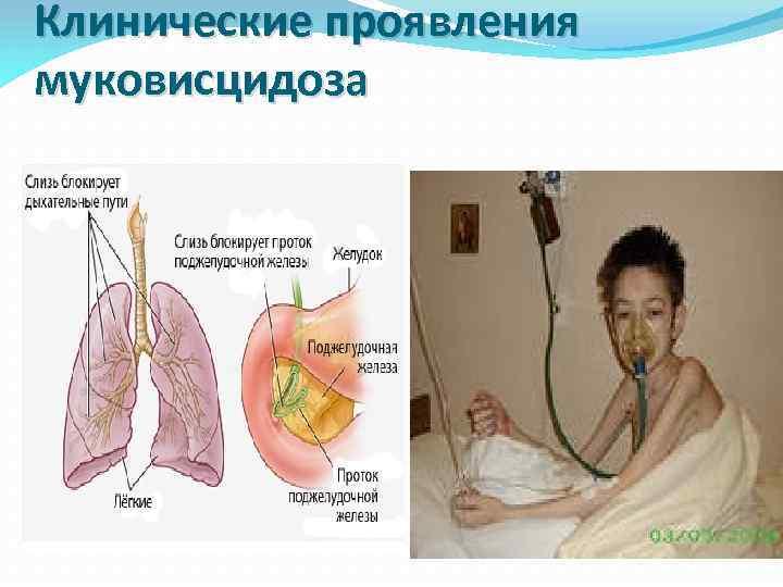 Клинические проявления муковисцидоза
