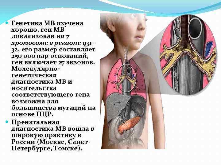 Генетика МВ изучена хорошо, ген МВ локализован на 7 хромосоме в регионе q