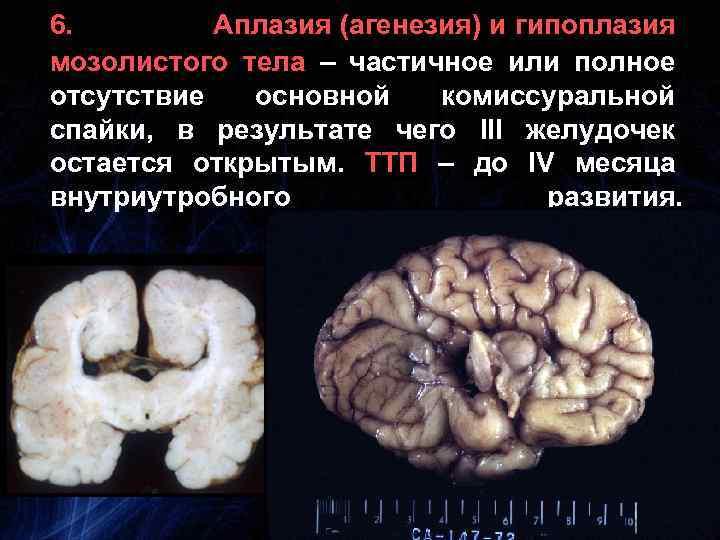 6. Аплазия (агенезия) и гипоплазия мозолистого тела – частичное или полное отсутствие основной комиссуральной
